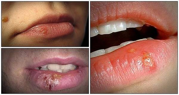herpes-after-kissing-5e6c49119b661