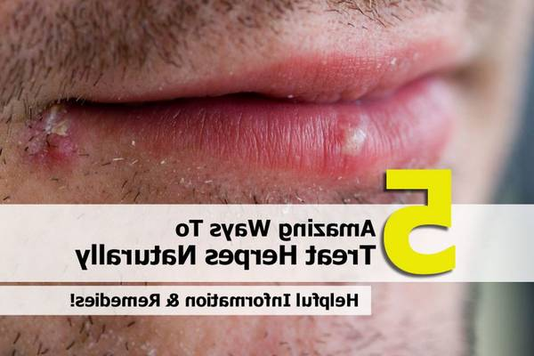 herpes-after-kissing-5e6c60a436dfc