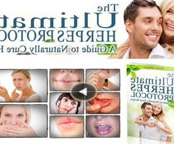 herpes-cream-5e6c4981e79fb