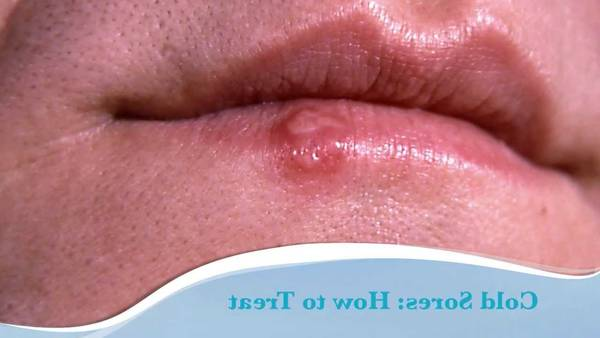 herpes-diagnosis-5e6c491031dfc
