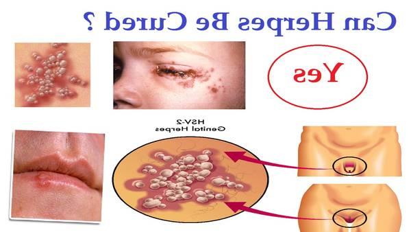 herpes-diagnosis-5e6c5495dd88a
