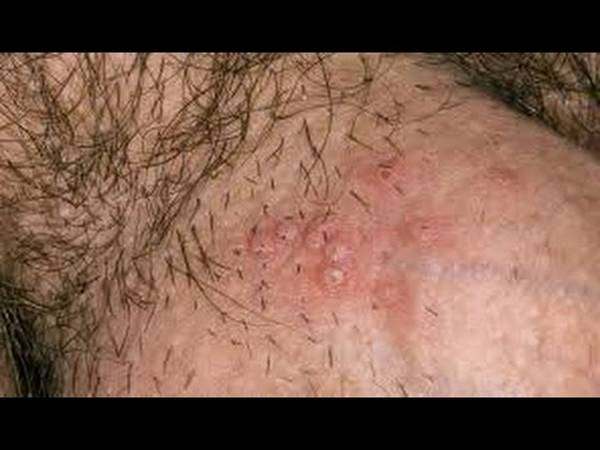 herpes-infection-5e6c49119a61c