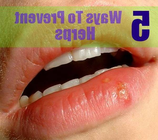 herpes-injection-5e6c490109bd0