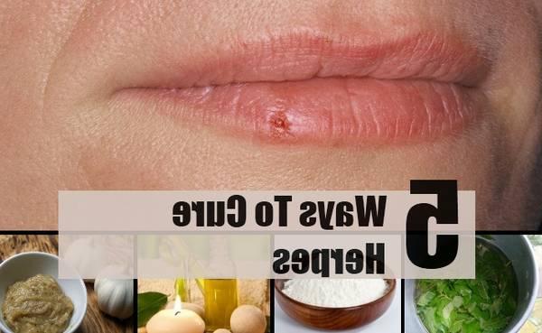 herpes-pregnancy-5e6c48ee5c0d6