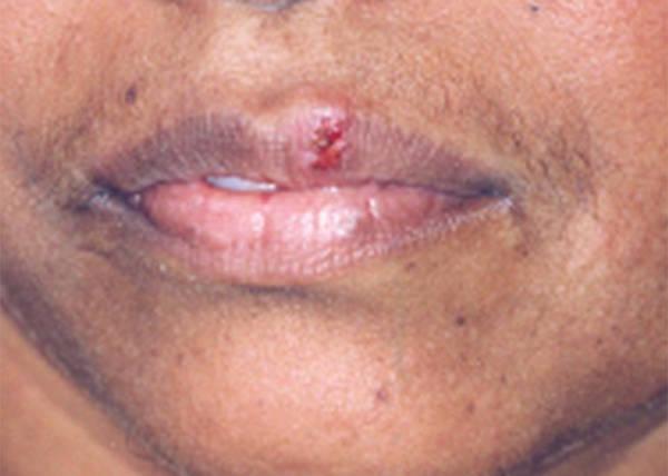 herpes-pregnancy-5e6c48f0255db
