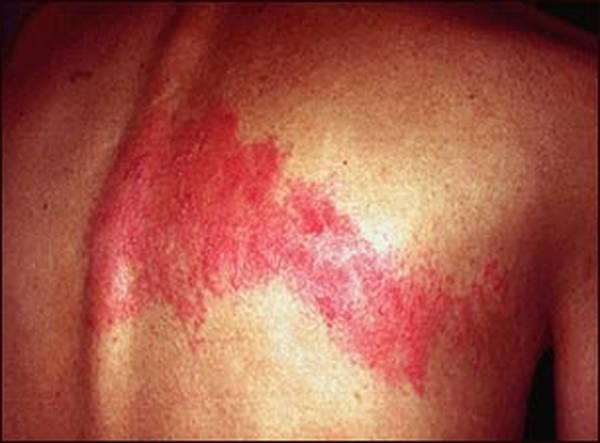 herpes-risk-5e6c493978c08