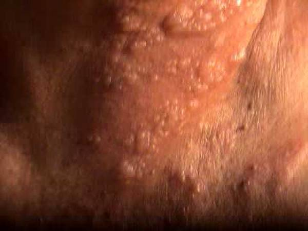 herpes-transmission-5e6c49397acb3