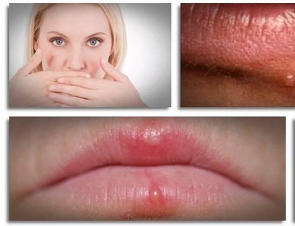prevent-herpes-5e6c60a5d0d99