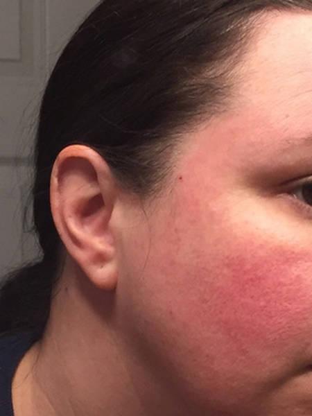 acne-back-problem-5eb123cf5cf82