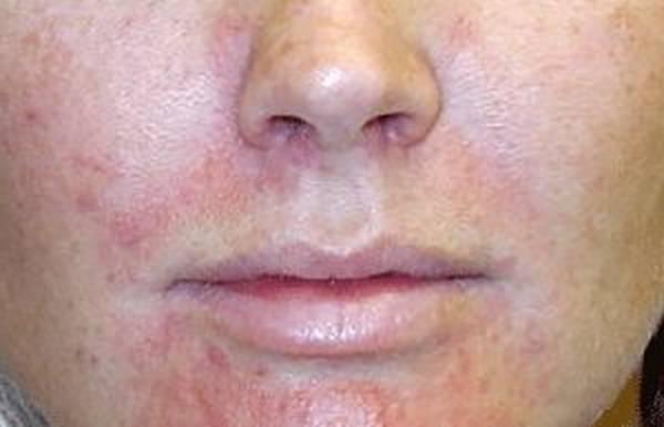 acne-chin-problem-5eb123c95f175