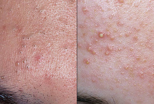 acne-face-problem-5eb123c84e259