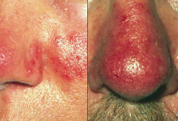 acne-liver-disorder-5eb123c960ac0