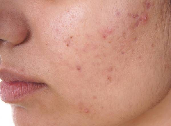 acne-problem-at-30-5eb12399ea597