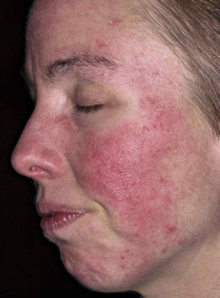 acne-problem-at-30-5eb123bc9c47f