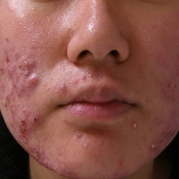 acne-problem-natural-solution-5eb123d1b4d49