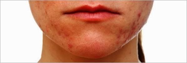 acne-treatment-5eb123c00d149