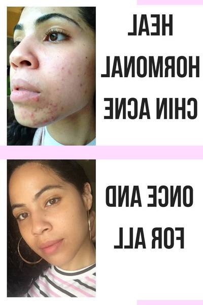 acne-treatment-5eb123c1575d2
