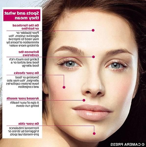 adult-acne-5eb123ce74320