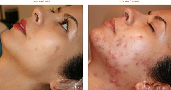 adult-acne-5eb123d601ad7