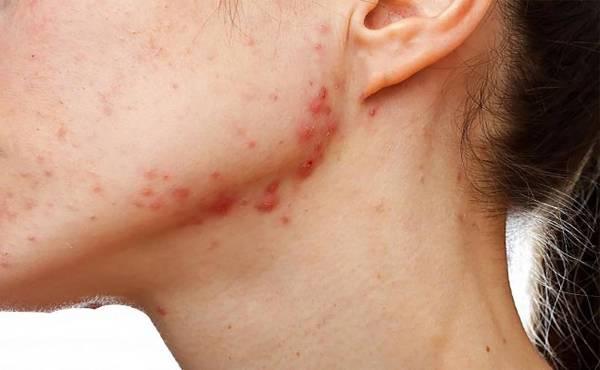 adult-acne-hormonal-problem-5eb123b84d1ee