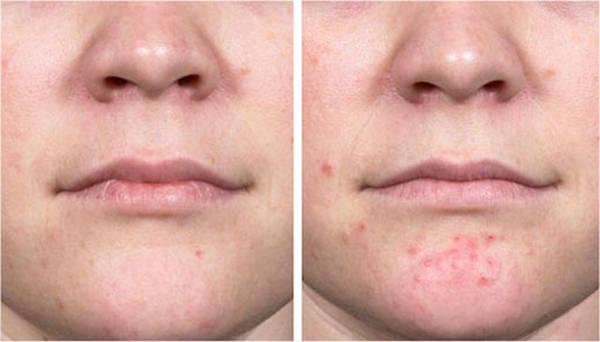adult-acne-hormonal-problem-5eb123c09cd68