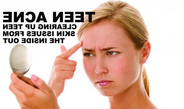 adult-acne-treatment-5eb123bb8f723