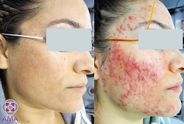 problem-acne-solution-5eb123b913aec