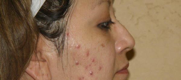 problem-acne-solution-5eb123cca3f1f