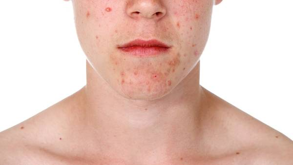 skin-problem-acne-adult-5eb1239718d5d