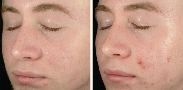 skin-problem-acne-adult-5eb123cc9d3b8