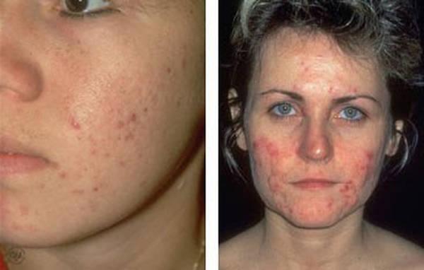 skin-problem-acne-adult-5eb123d27c149