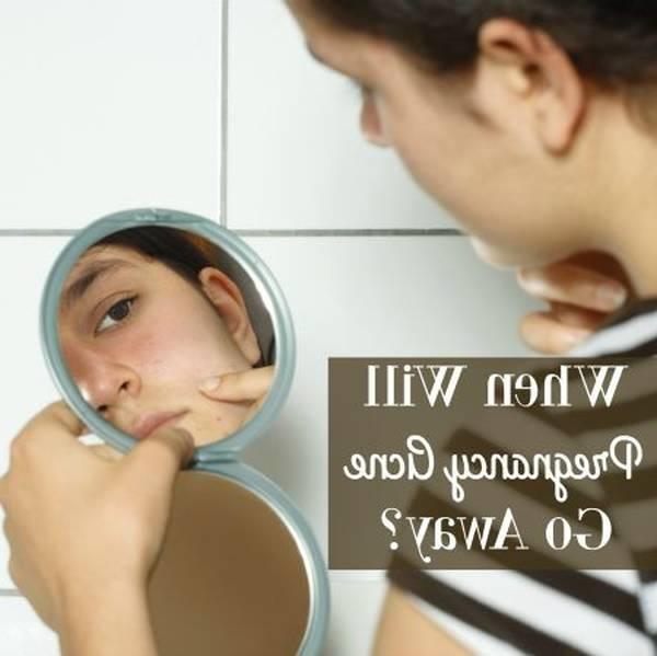 teenage-acne-5eb123c260dfa