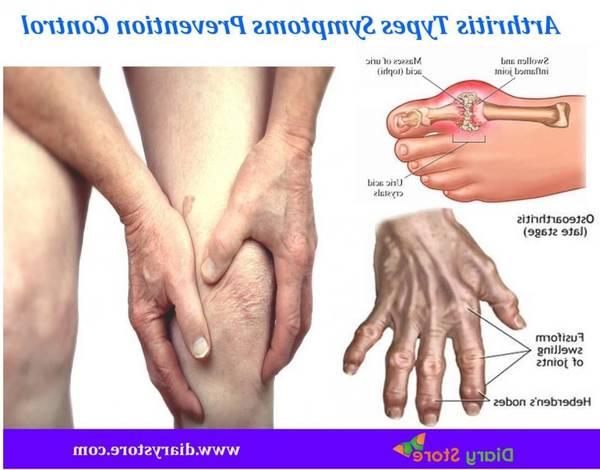 arthritic-5f2917b8ebd0a