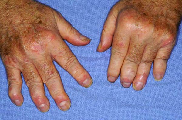 arthritic-5f29185a18f59