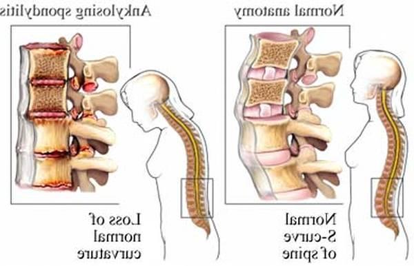 arthritic-5f2918ae80e73