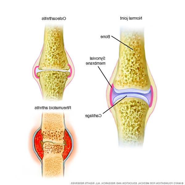 arthritis-diet-5f2917f650520