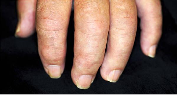 arthritis-diet-5f29185be48b2