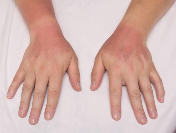 arthritis-diet-5f291875c0b9f