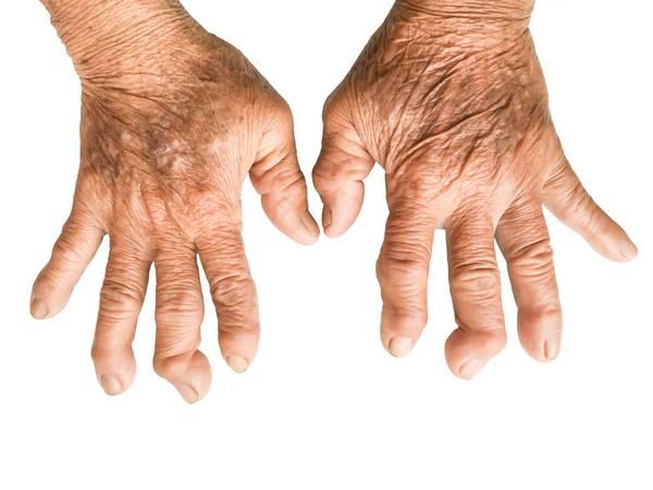 arthritis-stiffness-5f2918141578a