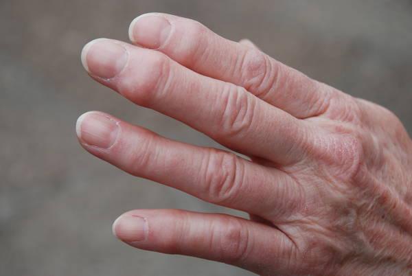 arthritis-stiffness-5f291857be15e
