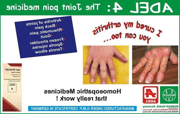 autoimmune-disease-5f2917f84b098