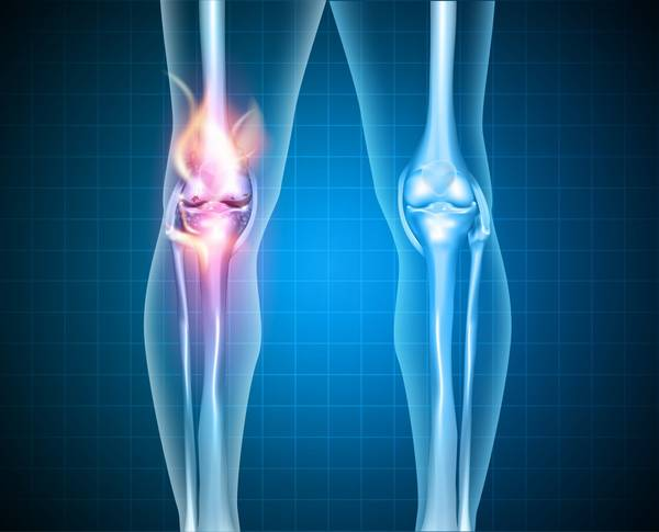 cartilage-rheumatic-5f2918357abb6