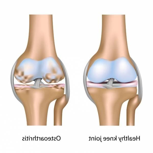 cartilage-rheumatic-5f29183ce6243