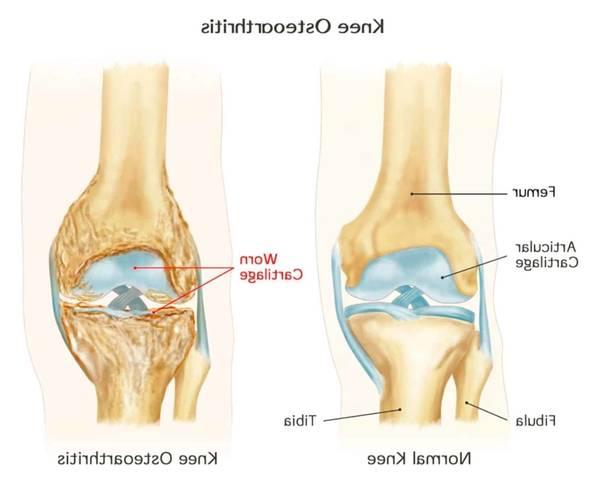 joint-inflammation-5f29183b1b18d