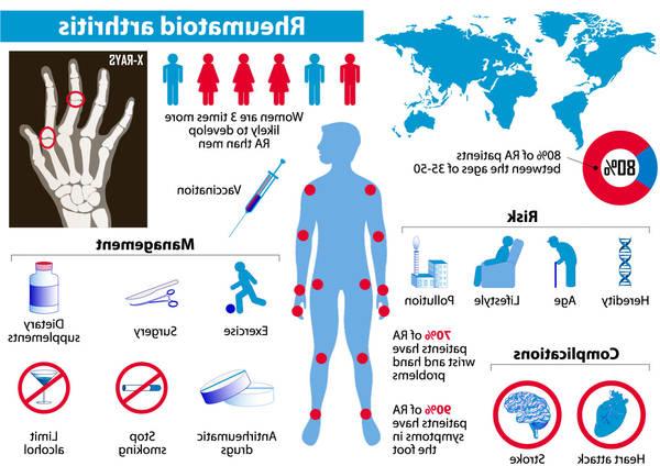 origins-of-arthritis-5f291837a4754