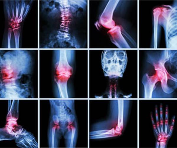 origins-of-arthritis-5f29187c00e0a