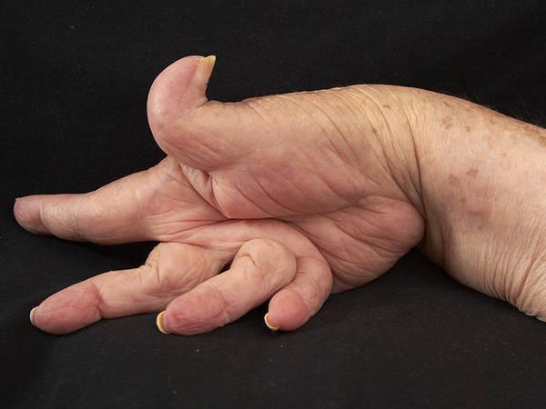 prevent-bent-fingers-5f291874acaf0
