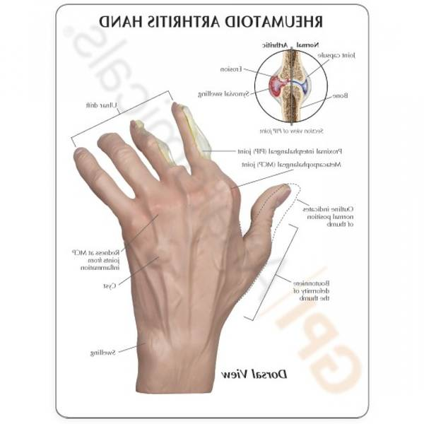 psoriatic-arthritis-5f291812e6cd2